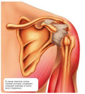 Вывих плеча – диагностика и лечение