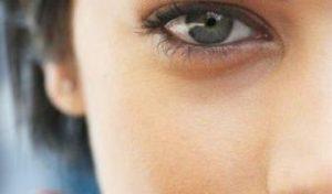 Синяки под глазами: причины появления