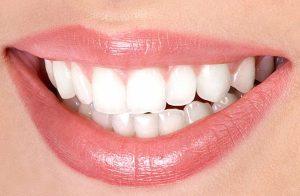 Как отбелить зубы: как отбелить зубы в домашних условиях без вреда?